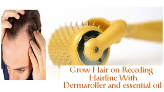 Fight Hair Loss with Dermaroller and Lavender Oil | Смотри